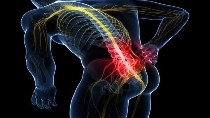 Consejos para bajar la inflamación del piriforme