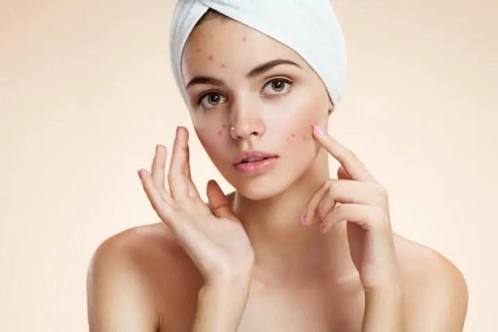 El aceite de toronja reduce el acné