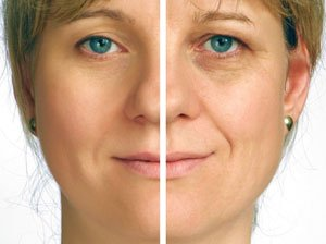 Haz desaparecer tus arrugas con tecnología láser