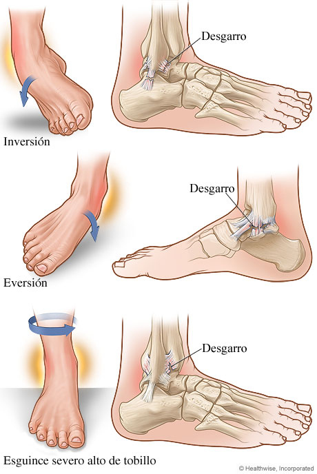 Muscle Torn Healing Ankle