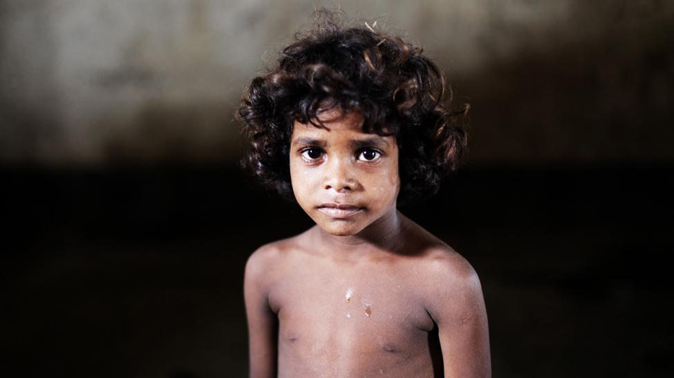 La comunidad dalit tiene acceso limitado a la salud pública. La salud de calidad es para ellos inasequible y prohibitiva, por lo que sólo recurren al médico en casos extremos o de urgencia a pesar de que más del 30% de los empleados de la salud pública se niega a hacer visitas en hogares dalit. La situación se agrava debido a que un tercio de estos hogares no disponen de facilidades básicas o saneamiento, por lo que los pequeños están más expuestos a las enfermedades. (Jason Taylor / ActionAid)