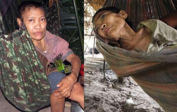 La salud de Jakarewyj, una mujer awá, se ha deteriorado drásticamente desde que su grupo fue contactado el pasado mes de diciembre. © Madalena Borges/CIMI-MA/Survival