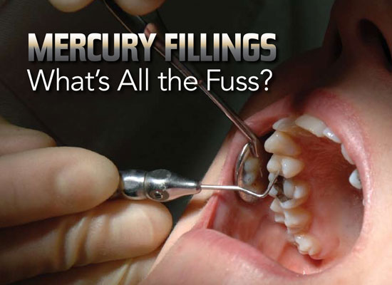 mercury-fillings