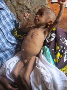 A malnourished child. Photo credit: ghp.usa.org