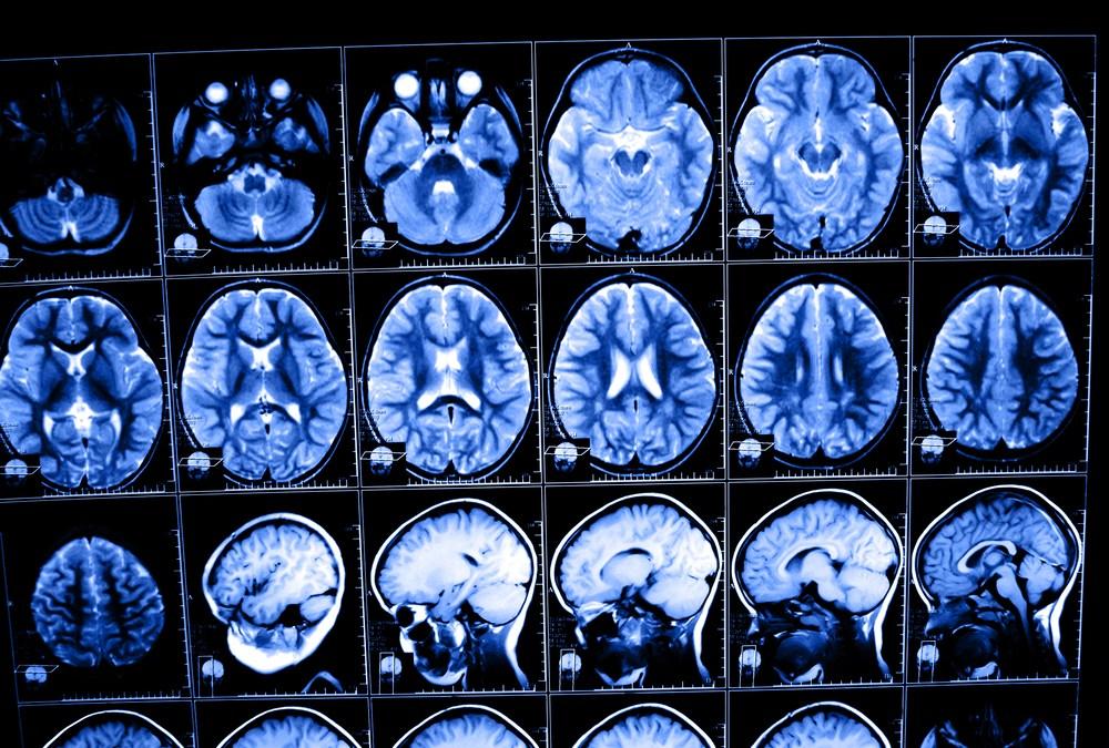Pollution Linked to Autism, Schizophrenia, Study Shows