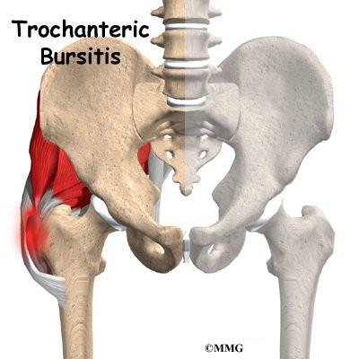kronisk inflammation i muskelfästen