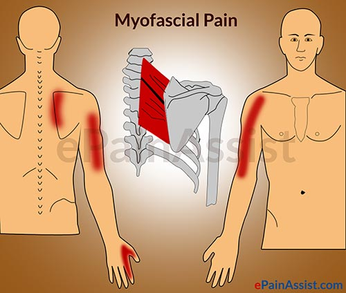 Image result for MYOFASCIAL PAIN SYNDROME (MPS) AND FIBROMYALGIA