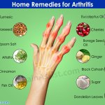 home remedies for arthritishome remedy for arthritis using eucalyptus oil