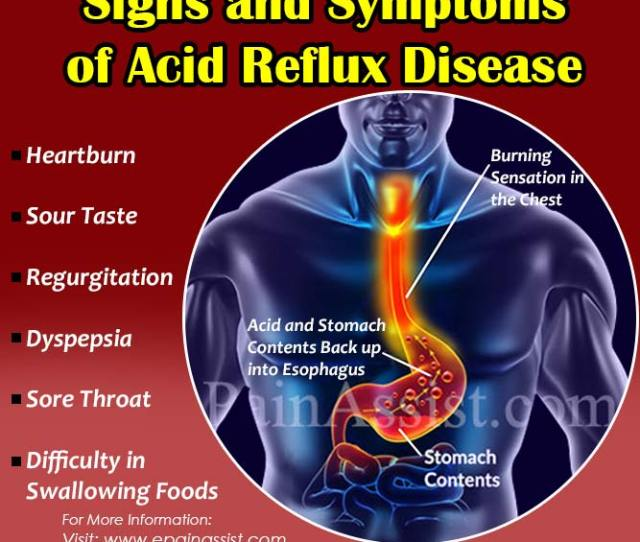 Common Signs And Symptoms Of Acid Reflux Disease