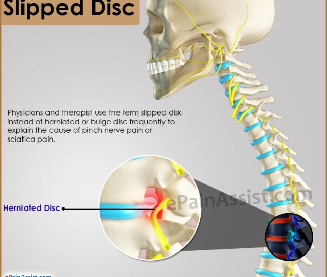 Slipped Disc Disc Anatomy Symptoms Signs Investigations Treatment Medications Biofeedback Preventive Measures