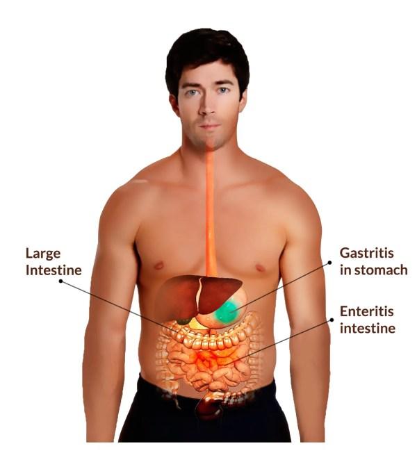 Gastroenteritis Causes, Symptoms and Treatment | Mediologiest