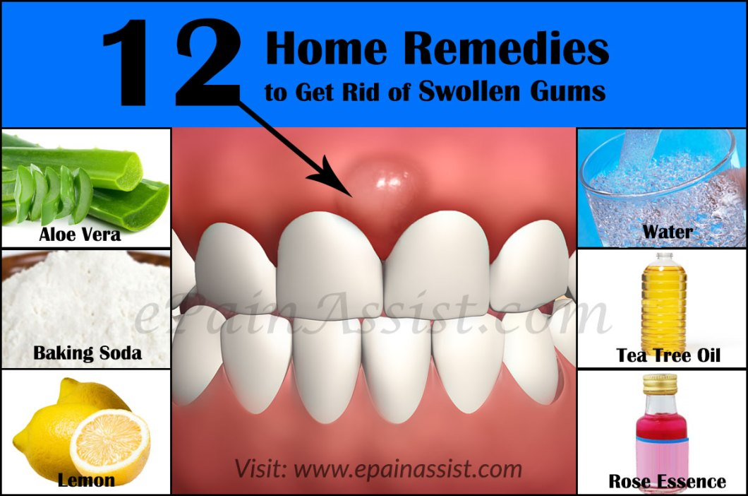 How To Get Rid Of Gum Pain Naturally