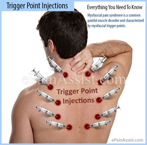 Trigger Point Injections: Everything You Need To Know