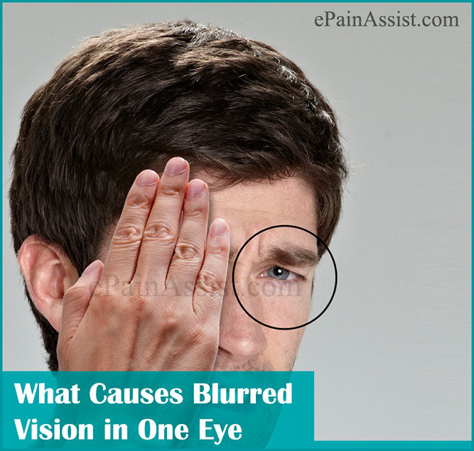 Image result for Top remedies for blurred vision shared by medianet.info