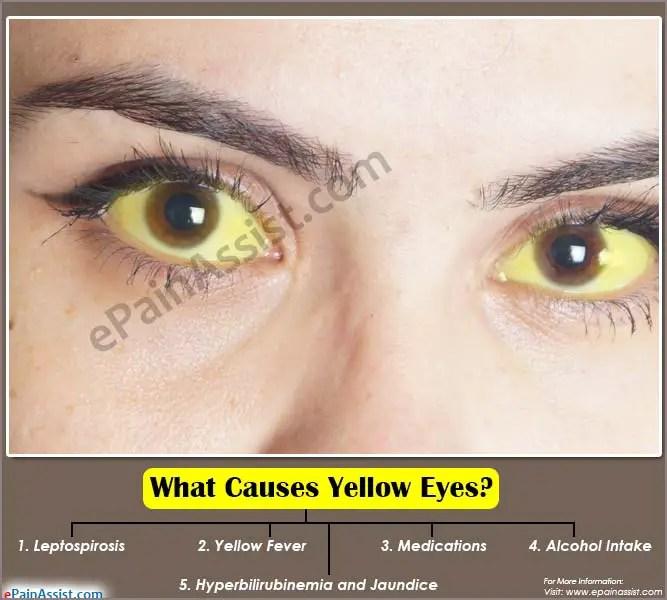 Yellow Eyes Liver Disease