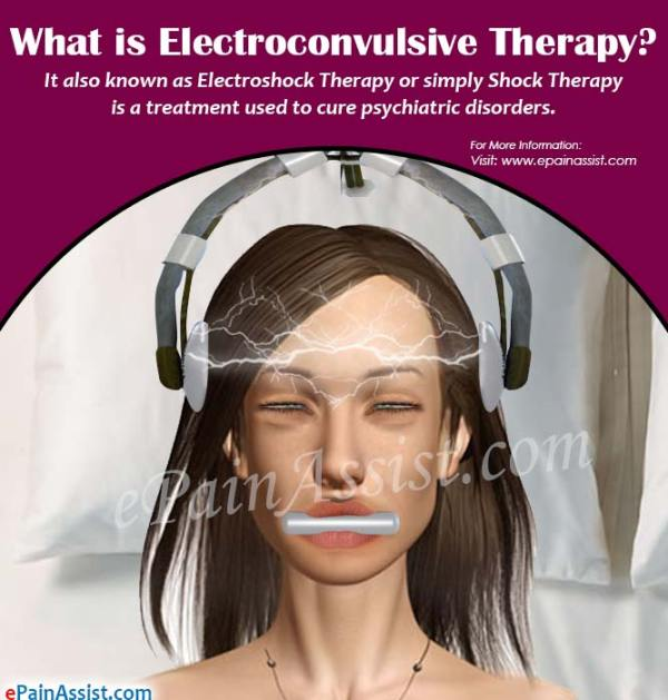 How is Electroconvulsive Therapy Done, Know Its Benefits ...