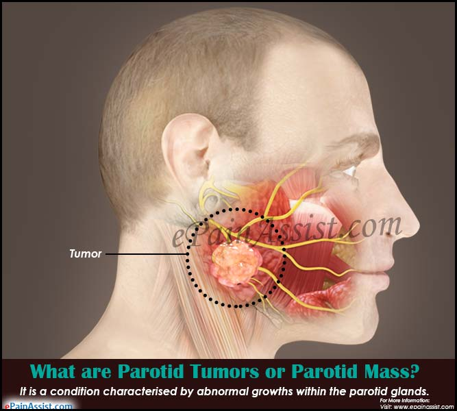 What Are Parotid Tumors Or Parotid Mass Causes Symptoms