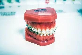 poor dental hygiene especially when wearing braces