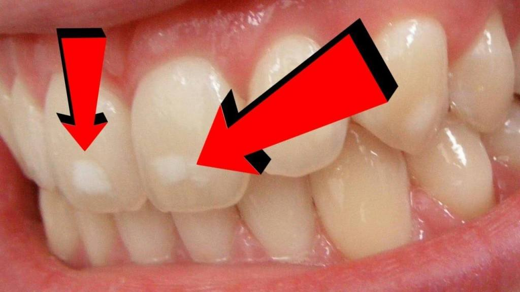 what causes white spots on teeth
