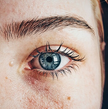 can prevent and treat dry eyes