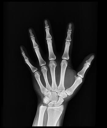help increase the strength of bones