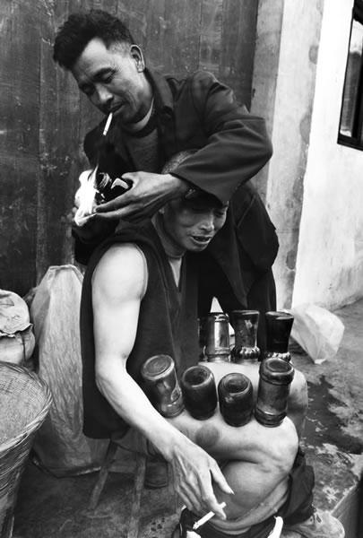 Народный лекарь ставит больному банки. Город Чунлай провинции Сычуань. Октябрь 2002 год. Фото: Qiang Jinneng