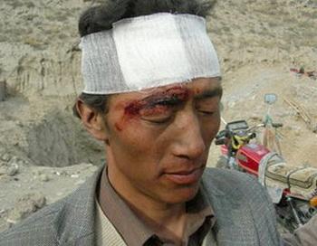 Один из тибетцев, раненых полицейскими. Фото: savetibet.ru