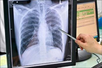 В Китае 45% населения заражена туберкулезными бактериями. Фото: The Liberty Times