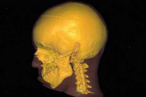 Трёхмерное(3-D)изображение черепа человека. Фото: Nasa/Getty Images