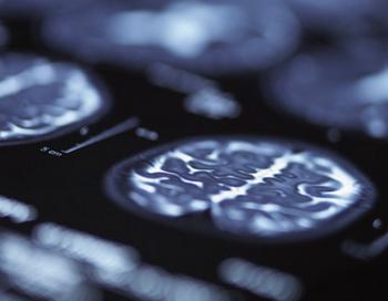 Нестабильное артериальное давление повышает риск развития инсульта. Фото: Adam Gault/Getty Images