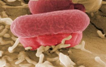Кишечная инфекция E.coli. Фото:PIERRE VERDY/AFP/Getty Images