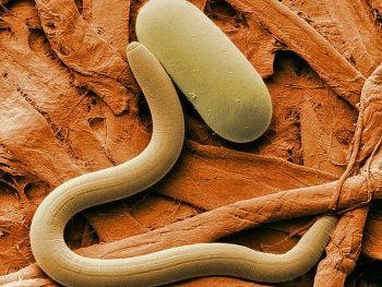 фотография круглого червя и его яйца, увеличенного в 1000 раз. Жёлтая краска, используемая в окрашивании misfolded белков, связанных с болезнью Альцгеймера, может повысить продолжительность жизни круглых червей на 78 процентов. (Agricultural Research Service)
