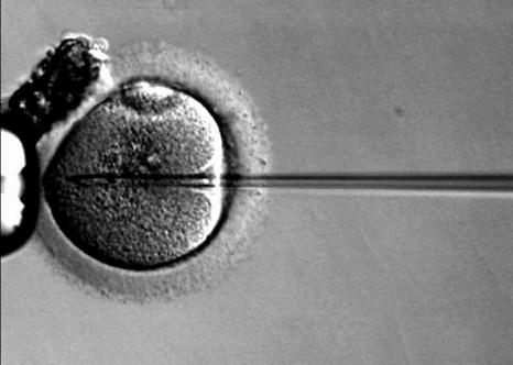 Интрацитоплазматическая инъекция сперматозоидов. Фото: Ekem/commons.wikimedia.org