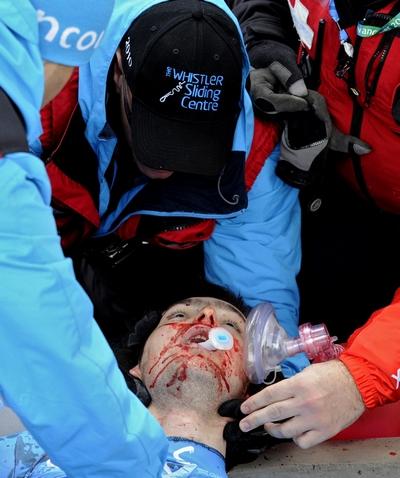 Президент МОК Жак Рогге подтвердил трагическую гибель грузинского спортсмена. Фото:  PETER PARKS/AFP/Getty Images