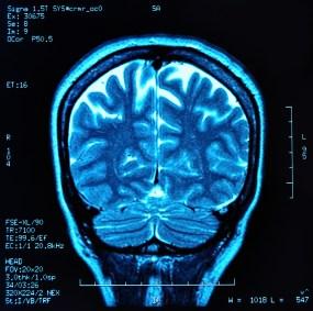 MRI-shutterstock_95801089-WEBONLY