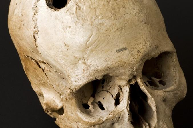 череп, операция на мозге