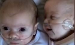 девочка, врачи, близнецы
