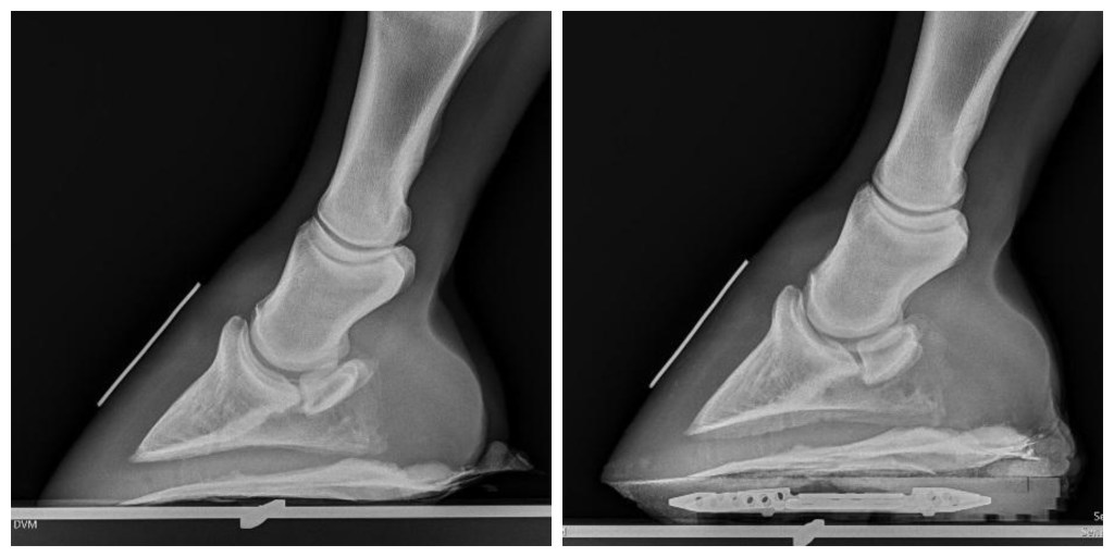Best practices for navicular disease