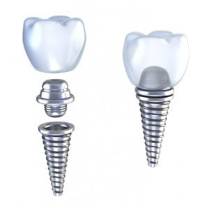Dental-Crowns-300x295
