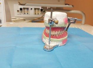 Dentures in Erb St. - Waterloo Dentist - Erbsville Dental