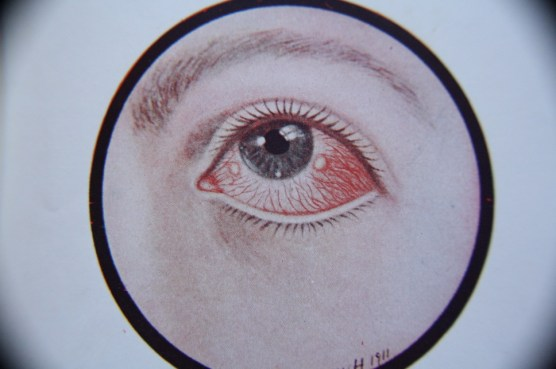 Materia Medica: Ocularium by Rachel Stuckey