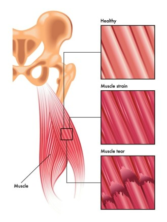 Muscular injuries - Degrees of Muscle Tears