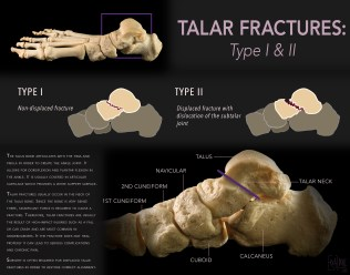 Talar Fractures