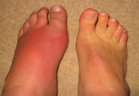 gout sysmptoms