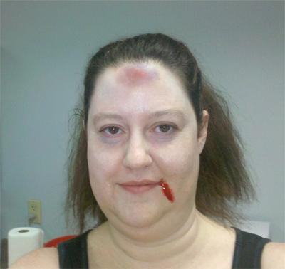 Erin injured