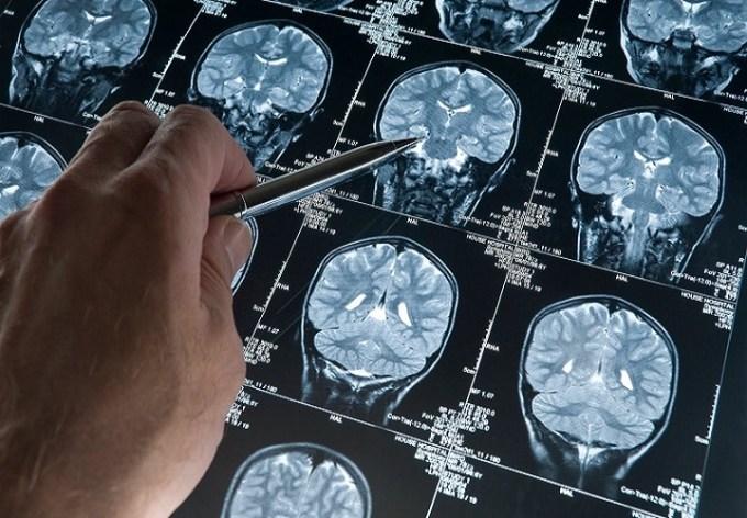 Alzheimer, ora si può prevedere la malattia 10 anni prima