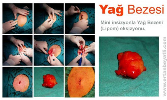 Lokal anestezi altında Mini insizyon ile yapılan lipom eksizyonu. Op.Dr.Ertan BEYATLI | 2015