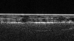Detecting buried water with radar medium - Água em estado liquido é detectada na sub-superfície de Marte