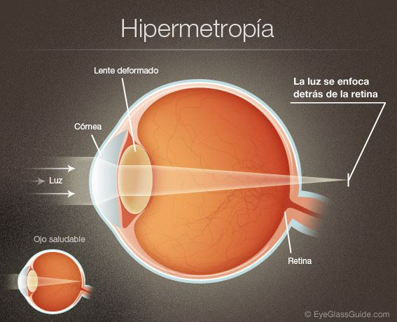 Resultado de imagen de HIPERMETROPÍA