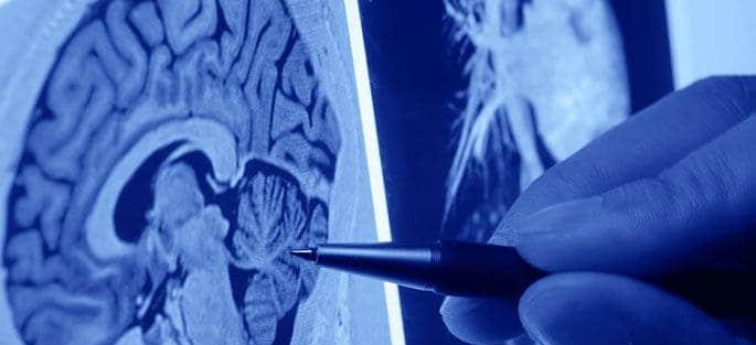 Neurology_685x313